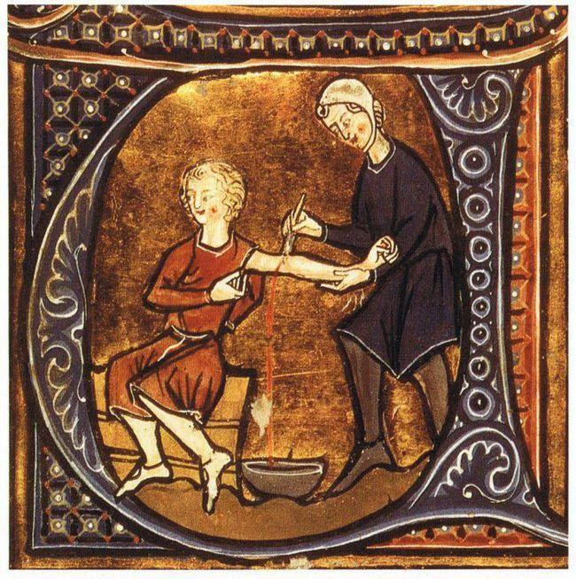 Фото - 7 Незвичайних медичних технологій давнину
