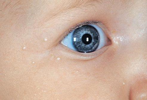 білі крапки на носі у новонароджених