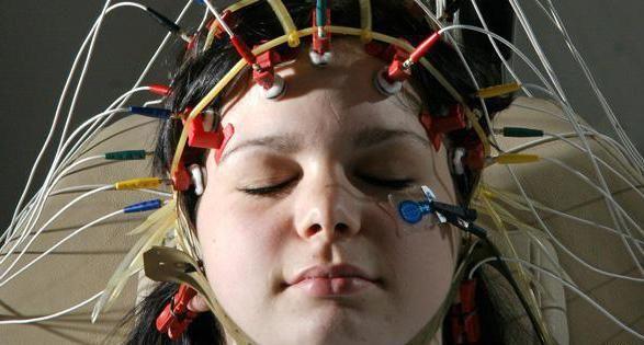 Фото - Що показує електроенцефалограма головного мозку? Хід процедури, опис, призначення та відгуки