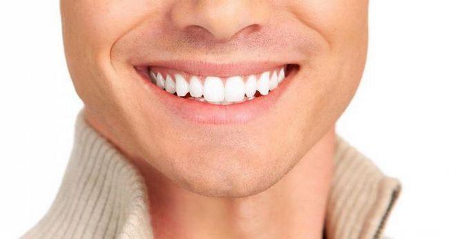 Фото - Що ваші зуби можуть розповісти про ваш