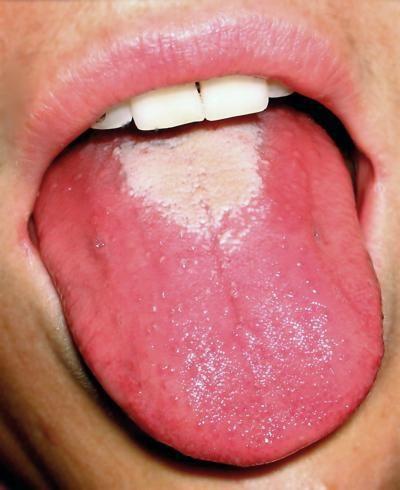 виразки на язиці і небі