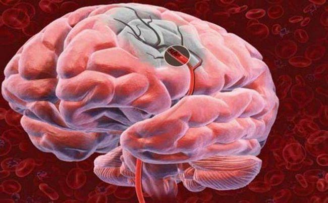 Фото - Як уникнути інсульту: 7 ефективних стратегій