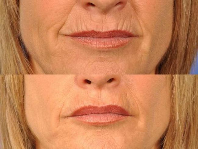 Фото - Як прибирають зморшки над верхньою губою: відгуки косметологів. Як прибрати зморшки над верхньою губою в домашніх умовах народними засобами?