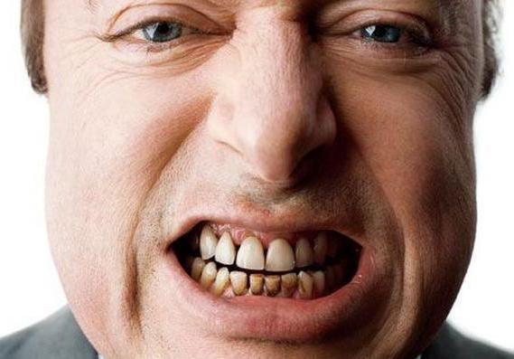 як зміцнити емаль зубів у дітей