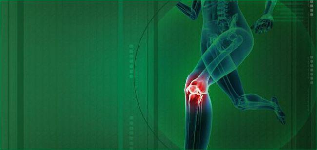 Фото - Медичні наколінники при артрозі колінного суглоба: як вибрати?