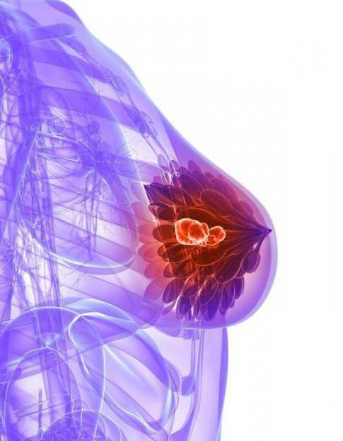 Фото - Мікрокальцинати в молочній залозі - що це таке? Причини, діагностика