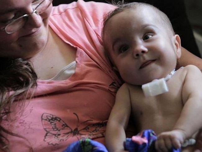 Фото - Нові технології: 4d-імплант врятує дітей з проблемами дихання