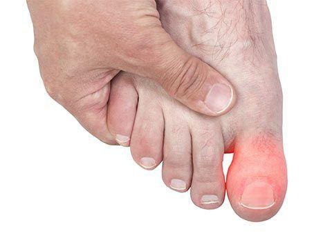 Фото - Перелом великого пальця ноги: симптоми. Чи потрібен гіпс при переломі великого пальця ноги?
