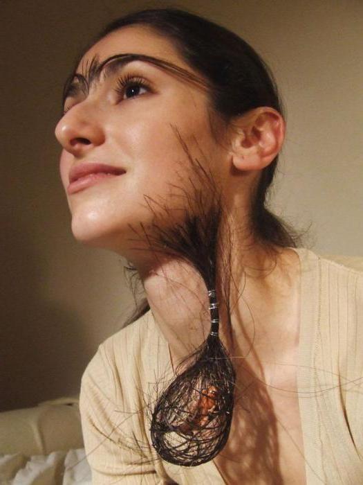 підвищена волосатість у дівчат