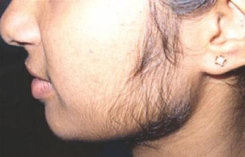 підвищена волосатість у дівчини