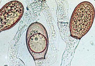класифікація мікроорганізмів за типом дихання