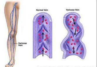 Фото - Профілактика варикозу вен на ногах. Вправи для ніг. Компресійну білизну при варикозі
