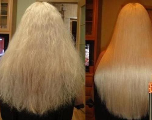 шампунь Алерана для росту волосся склад