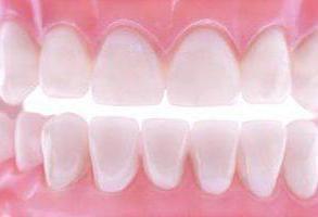 Фото - Зубні м'які протези: відгуки фахівців, фото