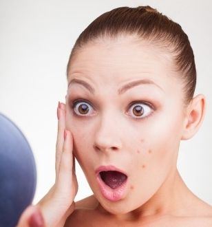 Фото - Що означають прищі на обличчі? Як з ними впоратися?