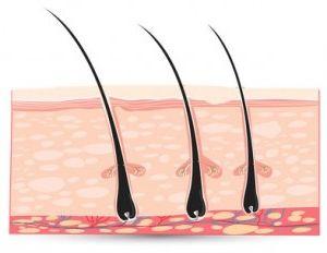 Фото - Як позбавлятися від врослого волосся: корисні поради