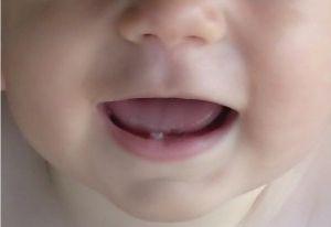 Фото - Як допомогти, коли ріжуться зуби у дитини