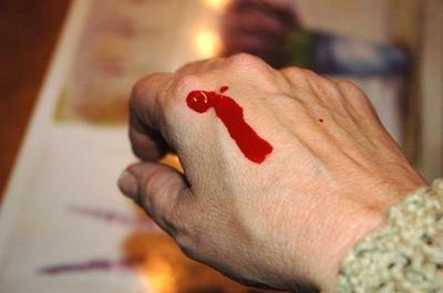 продукти підвищують тромбоцити