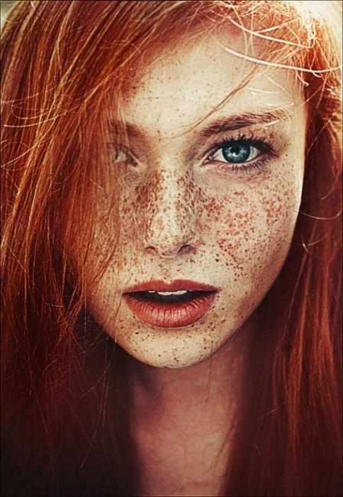 Фото - Які існують засоби від пігментних плям на обличчі