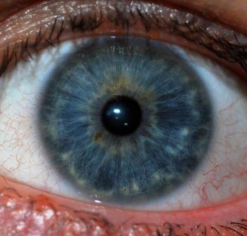 райдужна оболонка ока