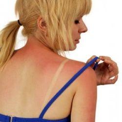 Фото - Швидка допомога вдома: крем від опіків сонячних, термічних та інших