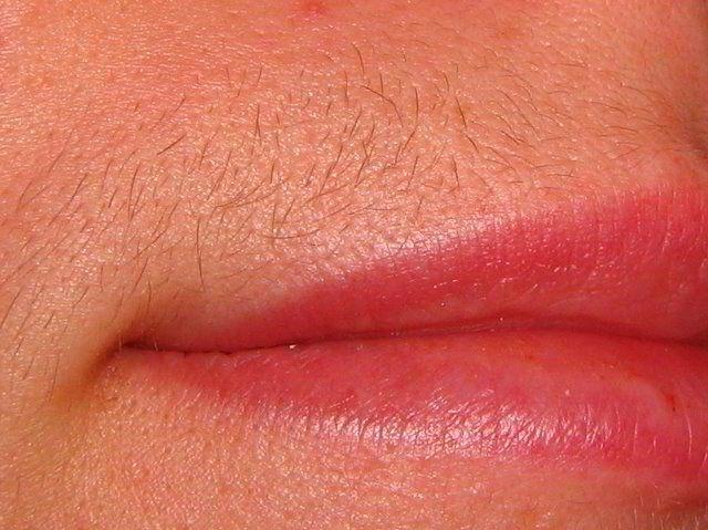 Фото - Поради: як прибрати волосся над верхньою губою