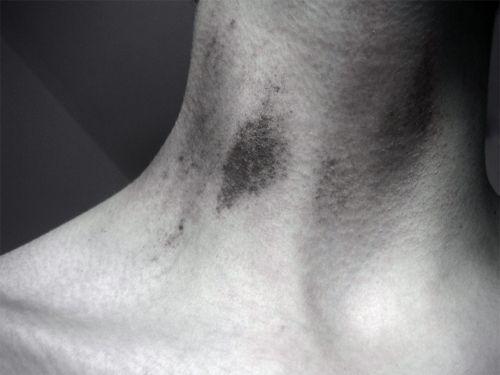 Фото - Засос на шию - еротизм у відкритому вигляді