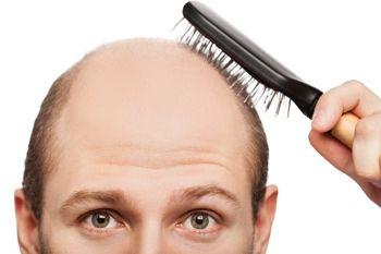 Фото - Hair megaspray: реальні відгуки чоловіків, фахівців