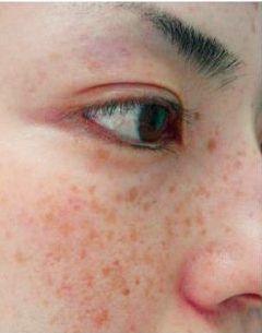 Фото - Як прибрати коричневі плями на обличчі. Плями на обличчі коричневого кольору - причини