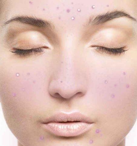 сонник видавлювати прищі на обличчі